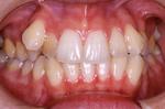 矯正3 八重歯の矯正治療