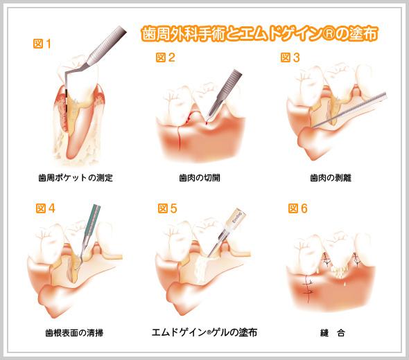 歯周外科手術とエムドゲイン®ゲルの塗布