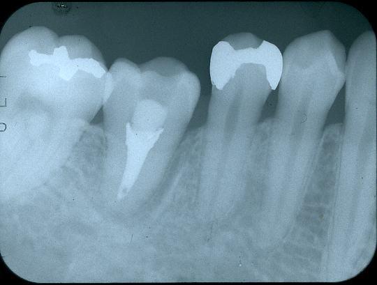歯牙移植1 治療後