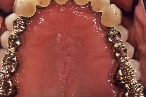 特殊義歯 治療後