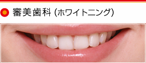 審美治療(ホワイト二ング)